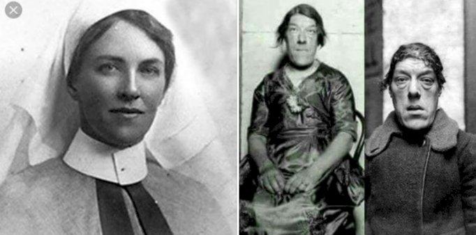 ماري آن بيفان أبشع إمرأة في العالم
